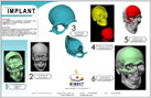 Projects - Skull Implant